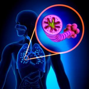 photodune-9430562-copd-chronic-obstructive-pulmonary-disease-xs